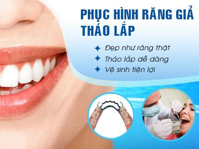Răng Tháo Lắp | Phục Hình Răng Tháo Lắp