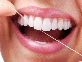 Răng Sứ Titan | Phục Hình Răng Sứ Titan