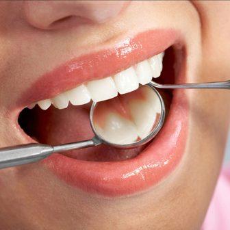 Răng Sứ Ceramco | Phục Hình Răng Sứ Ceramco